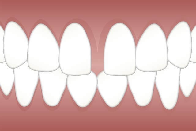 An illustration of a set a teeth with a gap between the two front teeth